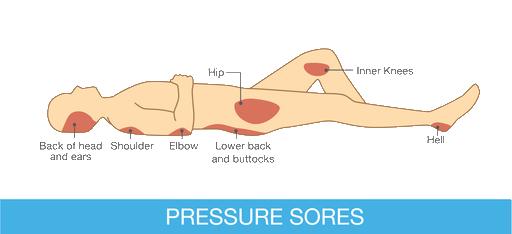 Pressure sores