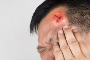 Head injury compensation claim