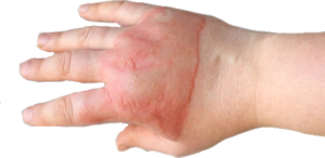 Hand injury claim
